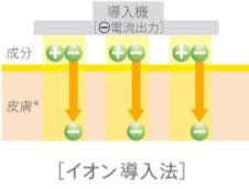 イオン導入法イメージ図