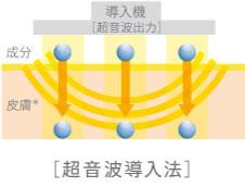 超音波導入法イメージ図